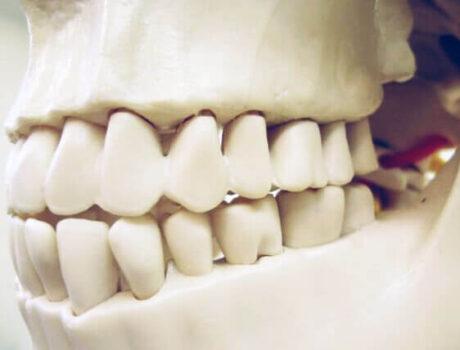 奥歯の噛み合わせ