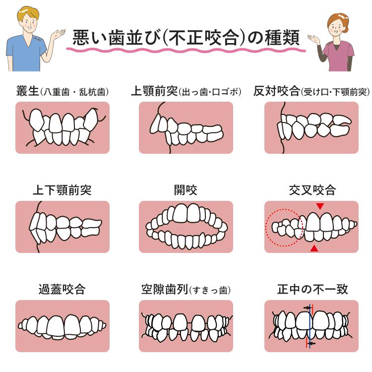 悪い歯並び「不正咬合」の種類