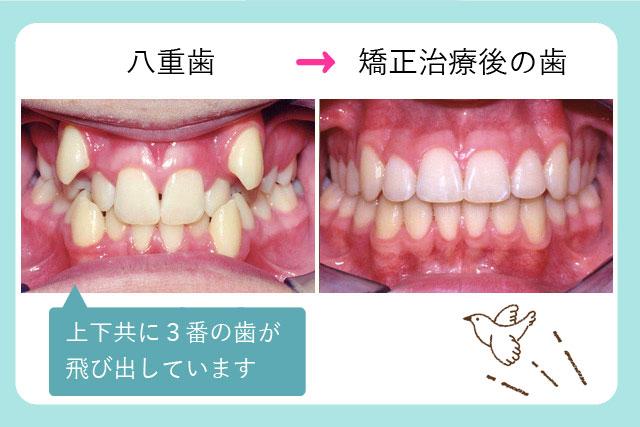 八重歯治療前治療後